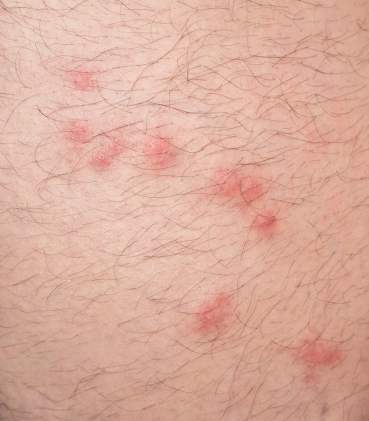 close up view of flea bites over caucasian man leg skin